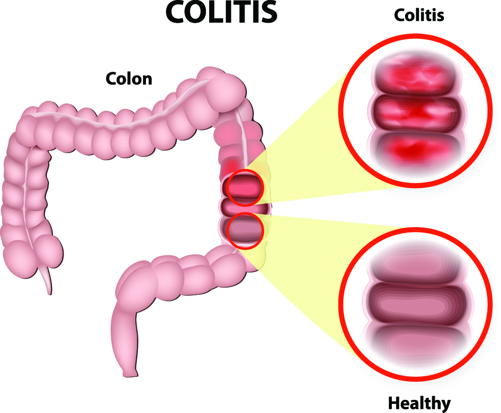 Colitis Treatment Jacksonville FL